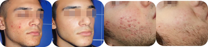 Acnelan - Before & After